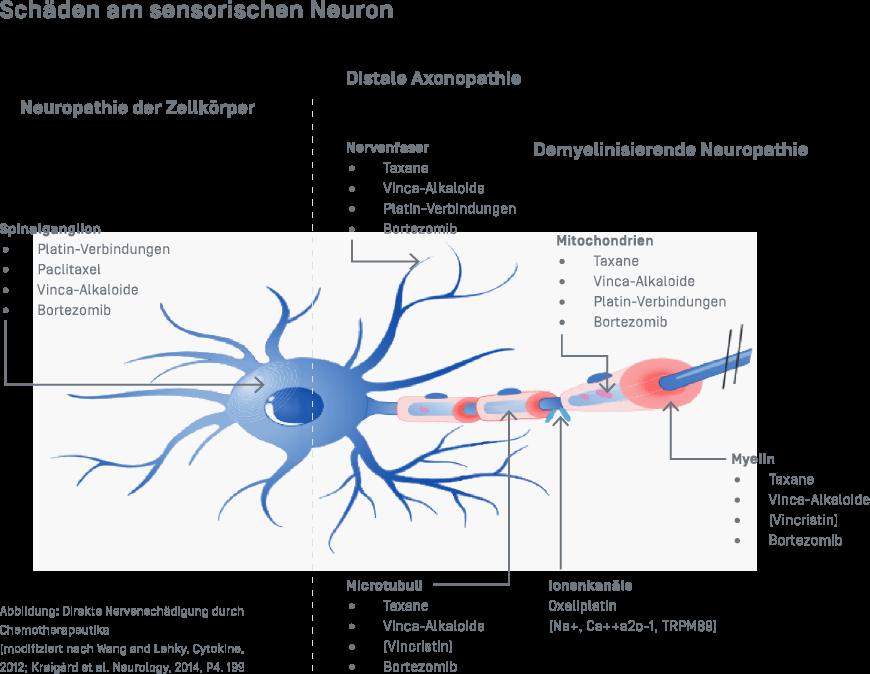 Polyneuropatie - Schäden am Sensorchen Neuron - Grafik